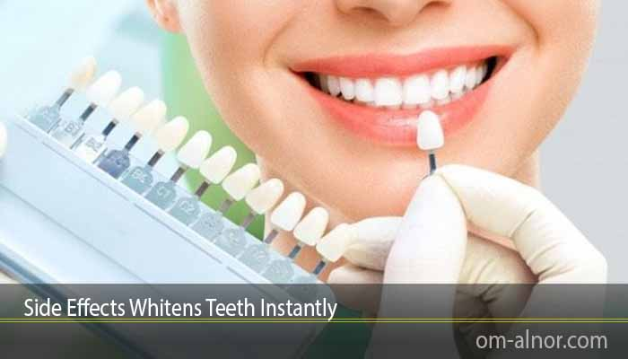 Side Effects Whitens Teeth Instantly
